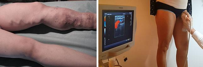 Normal damarlar ile varisler renkli Doppler ultrasonla kolayca ayrılabilir.