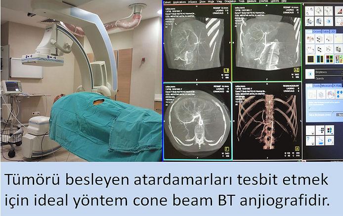 Tümörü besleyen atardamarları tesbit etmek için ideal yöntem cone beam BT anjiografidir.