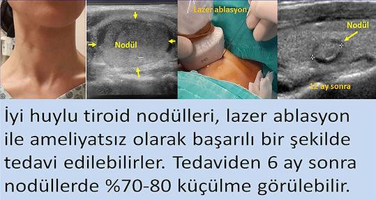 İyi huylu tiroid nodülleri lazer ablasyonla tedavi edilebilirler.