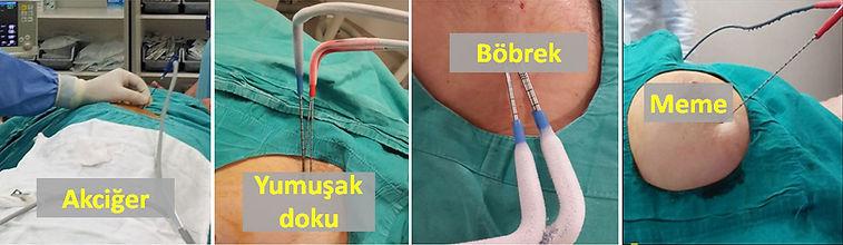 Bazı akciğer, yumuşak doku, böbrek ve meme tümörleri kriyoablasyon (dondurma) yöntemiyle tedavi edilebilirler.