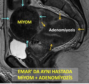 15 Emar'da miyom ve adenomiyozis.jpg