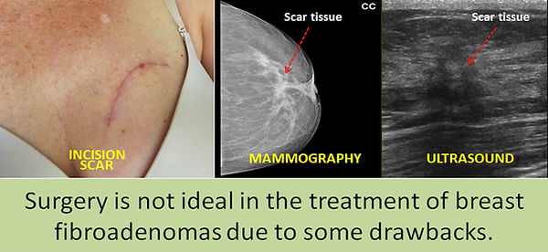 Disadvantages of surgery in breast fibroadenomas.
