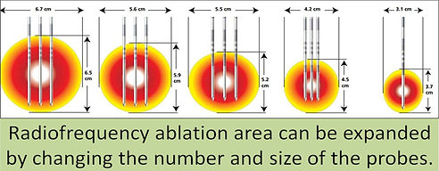 In radiofrequency ablation, the ablation area can be expanded in some systems.