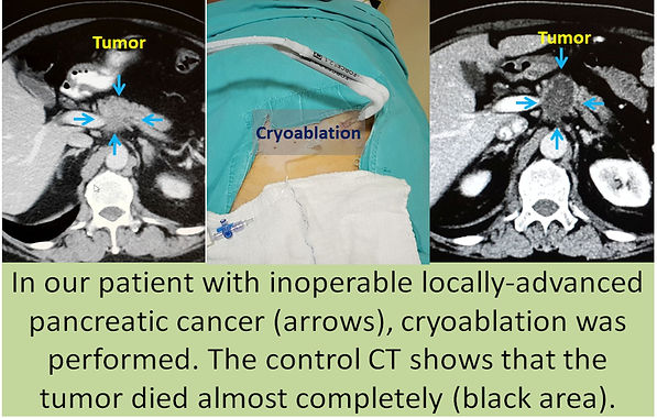 Cryoablation in locally advanced pancreatic cancer.