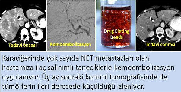Nöroendokrin tümörlerde (NET) karaciğer metastazlarına Doxorübisin TAKE (kemoembolizasyon).