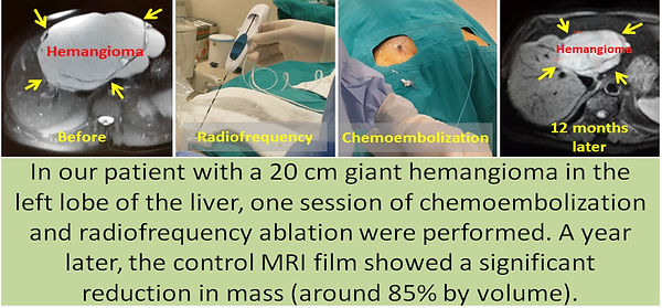 Combined chemoembolization and radiofrequency ablation of liver hemangiomas.f