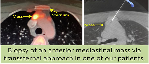 Percutaneous biopsy of an anterior mediastinal mass.