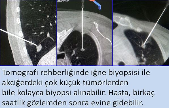 Tomografi rehberliğinde akciğer iğne biyopsisi ile çok küçük kitleler de örneklenebilir.