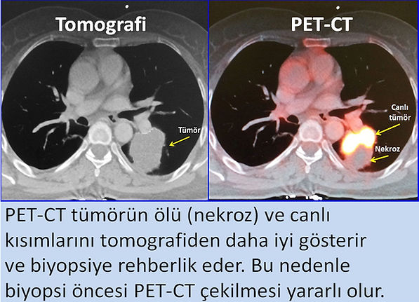 PET-CT tümör nekrozunu göstererek biyopsiye rehberlik eder.