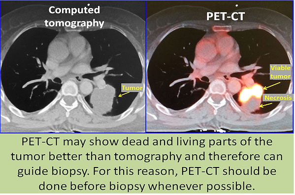 Value of PET-CT in lung cancer.