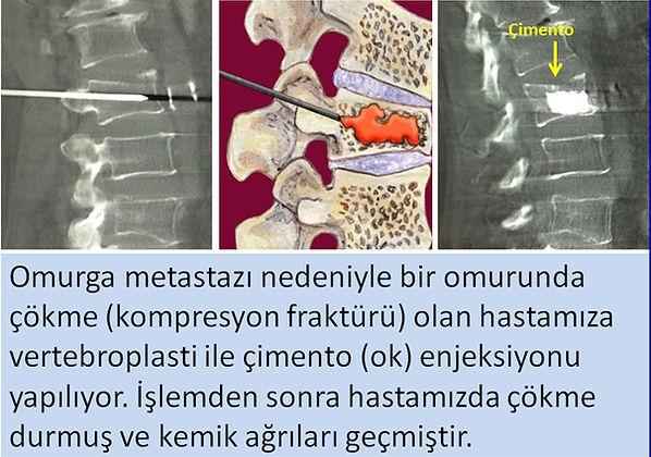 Omurga metastazı çökme kırığına (kompresyon fraktürü) vertebroplasti.