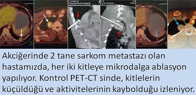 Yumuşak doku sarkomu akciğer metastazlarında mikrodalga ablasyonu