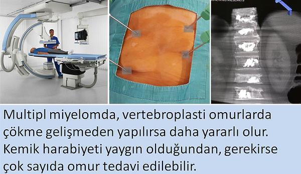 Multipl miyelomda, vertebroplasti omurlarda çökme gelişmeden yapılırsa daha yararlıolur.