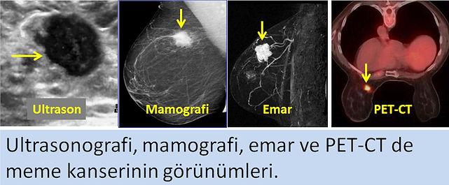 meme kanserinin ultrason, mamografi, emar ve PET-CT görünümleri.