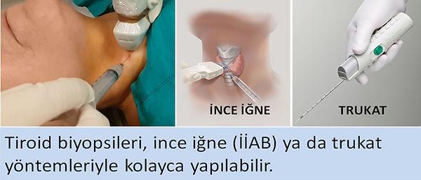 Tiroid biyopsileri İİAB ya da trukat yöntemleriyle kolayca yapılabilir.