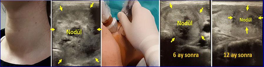 Ciltten çıkıntı yapan büyük tiroid nodülünün perkütan radyofrekans ablasyon ile tedavisi.
