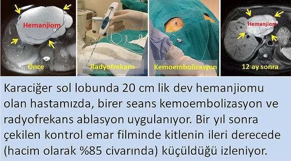Dev karaciğer hemanjiomunda, radyofrekans ablasyonu ve Bleomisin-TAKE (kemoembolizasyon) tedavileri.