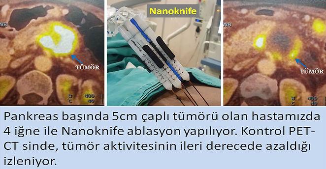 Nanoknife tedavisi pankreas tümöründe çevre dokuya minimal zarar vererek ablasyon ypabilir.