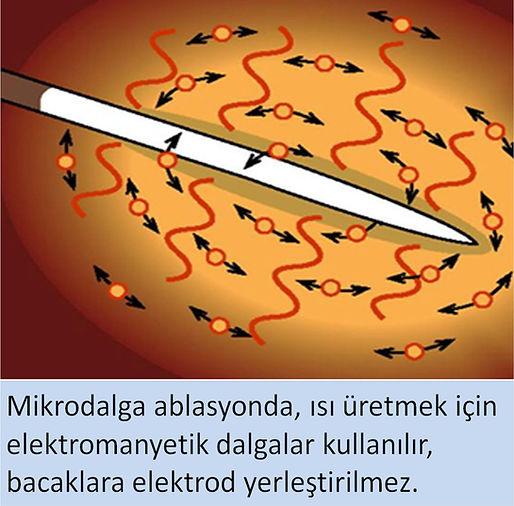 Mikrodalga ablasyonda bacaklara elektrod (pad) yerleştirilmez.