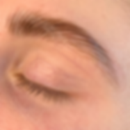 brow lift 1.png