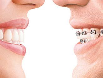 ¿Sabe Ud. que es la Ortodoncia?