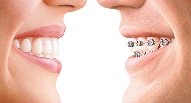 Esta especialidad tiene como fin el diagnóstico y tratamiento de las alteraciones de la posición de los dientes y/o huesos maxilares. Por lo general, el tratamiento implica la colocación de brackets y alambres delgados que tienen la función de alinear los dientes y ajustar la mordida de manera ideal.