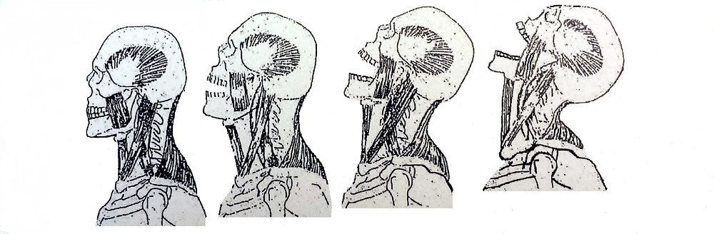 TMJ Temporomandibular Joints