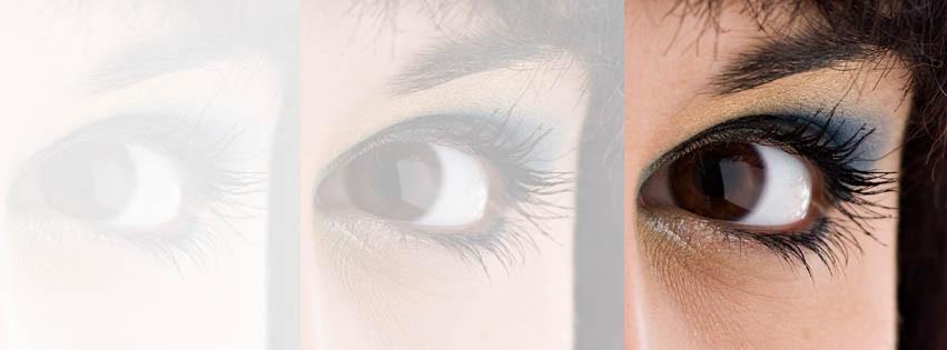 wet age-related macular degeneration Simon Falk eyecare Optometrists Opticians in Leeds