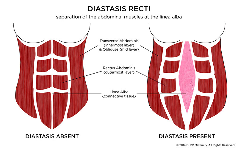 Diastasis Recti. Post-natal