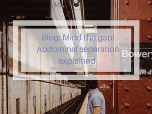 Abdominal separation: what is it and how to heal it
