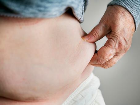 L'obésité abdominale