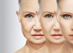 Face Rejuvenation, Face lifting