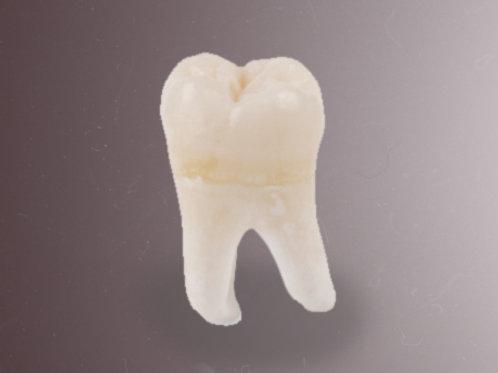 Original Engstrom Wisdom Tooth