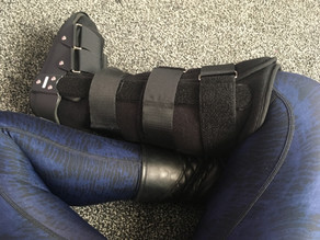 How a broken foot changes more than just your walk