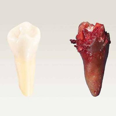 Zęby-martwe-1200x558.jpg