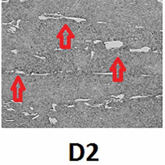 Figura 2: Microestrutura do aço D2, mostra grandes carbonetos