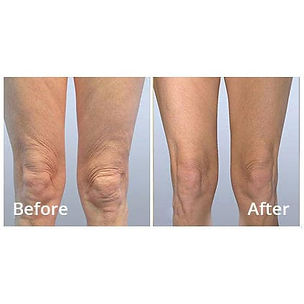 Radio Frequency legs at Body TLC