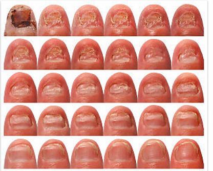 Lasr Fungal Nail Treatment at Body TLC