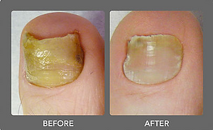Fungal Nail Treatmnt at Body TLC