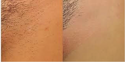 Diode Laser Hair Removal at Body TLC