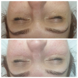Under Eye Texture and Padding
