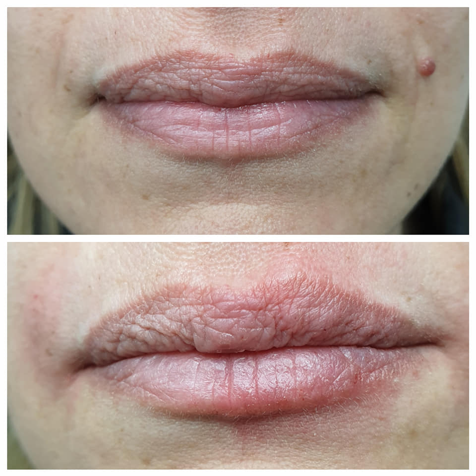 Oral Commissures and Fuller Lips