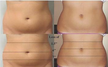 Liposonics at Body TLC