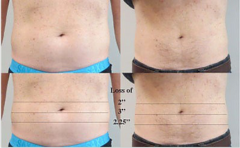 Liposonics at Body TLC