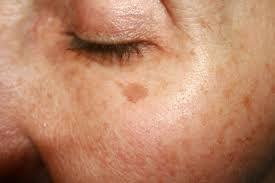 sunspot_freckles.jpg