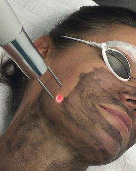 laser carbon peel.jpg