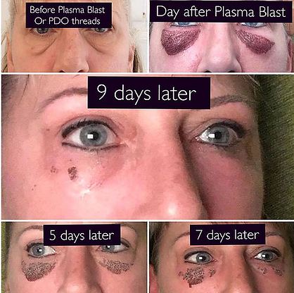 Plasma Perfect Lift at Body TLC