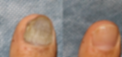 Fungal Nail Treatmentat Body TLC