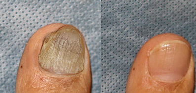 Fungal Nail Treatmentat Body TLC