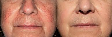 Laser Vein Removal at Body TLC